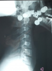 Lateral C-Spine
